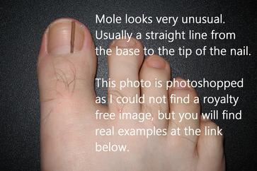 Sunshine and Moles | Sole to Soul Foot Clinic